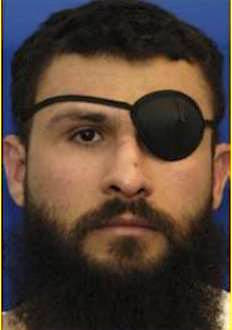 Abu Zubaydah at Guantanamo, in a photo included in the classified military files released by WikiLeaks in 2011. The eye patch covers his lost eye, removed in US custody.